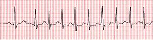 An ECG recording of an irregular heartbeat during an event.