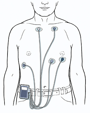 Man's torso showing five ECG leads attached to chest, connected to Holter monitor clipped to belt.