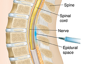 Cross section of lower spine with needle inserted just outside sac surrounding spinal cord.