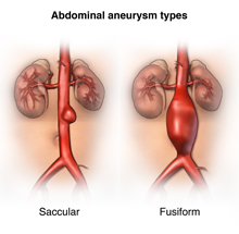 Different types of aortic anerysms